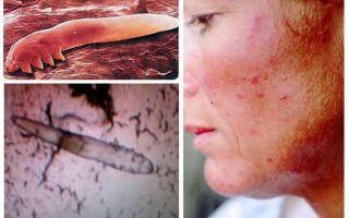 Υποδόριες ψείρες στους ανθρώπους στο σώμα και το κεφάλι