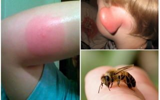 Bitten bumblebee - τι να κάνουμε στο σπίτι