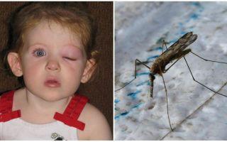 Τι να κάνετε εάν ένα παιδί έχει πρησμένο μάτι μετά από ένα τσίμπημα κουνουπιού