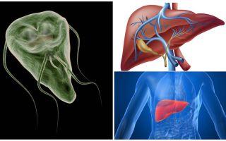 Giardia στο συκώτι - συμπτώματα και θεραπεία