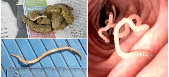 Τι μοιάζουν με roundworms στα ανθρώπινα κόπρανα;