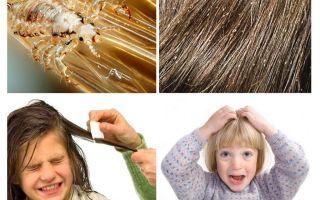 Τι να κάνετε εάν ένα παιδί έχει ψείρες