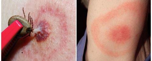 Τι είναι η νόσος του Lyme, τα συμπτώματα, η θεραπεία και η φωτογραφία