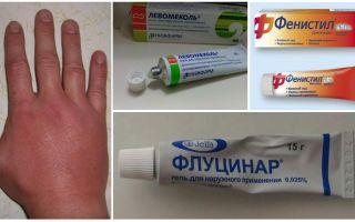 Μετά από ένα δάγκωμα κουνουπιού, το χέρι του παιδιού ή του ενήλικα έχει διογκωθεί
