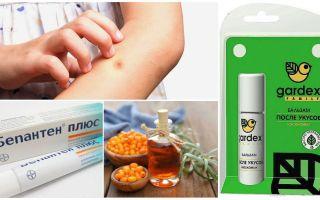 Κατάστημα και λαϊκές θεραπείες για τσιμπήματα κουνουπιών και μαύρες μαύρες