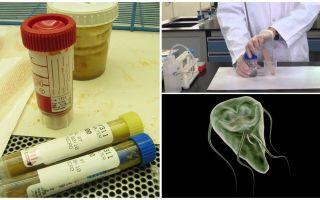 Πώς να περάσει σωστά τα περιττώματα στη Giardia, μέθοδοι ανάλυσης