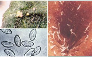 Τι φαίνονται τα αυγά pinworm;