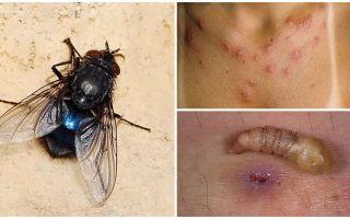 Μια μύγα που φέρει προνύμφες κάτω από το ανθρώπινο δέρμα