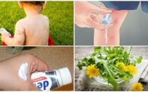 Πώς να χρίσετε ένα τσίμπημα παιδιών κουνουπιών