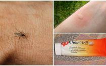 Πώς και πώς να αφαιρέσετε την κνησμό από τσιμπήματα κουνουπιών σε ένα παιδί και έναν ενήλικα