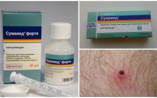 Αντιβιοτικά μετά από δάγκωμα τσιμπούρι
