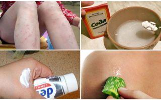 Πώς να αφαιρέσετε τα κόκκινα σημεία από τσιμπήματα κουνουπιών