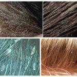 Οι ψείρες στα μαλλιά