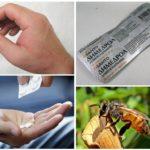 Θεραπεία αλλεργίας στο στόμα
